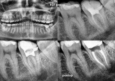 Powtórne leczenie kanałowe pod mikroskopem zęba 37