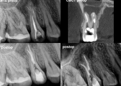 Leczenie kanałowe pod mikroskopem - ząb 15