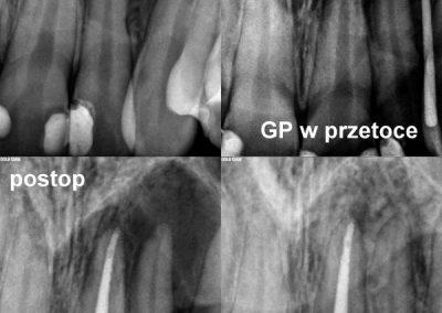 Leczenie kanałowe pod mikroskopem zęba 21 z bardzo dużą zmianą zapalną