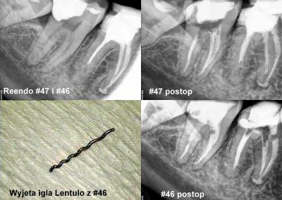 Leczenie kanałowe pod mikroskopem zęba 47 i 46 z usunięciem złamanego narzędzia