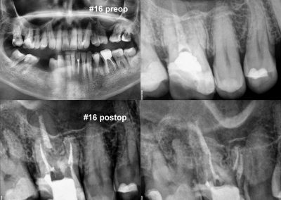 Powtórne leczenie kanałowe pod mikroskopem zęba 16