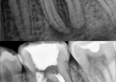 Leczenie kanałowe pod mikroskopem zęba 36