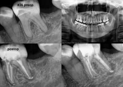 Leczenie kanałowe pod mikroskopem - ząb 36