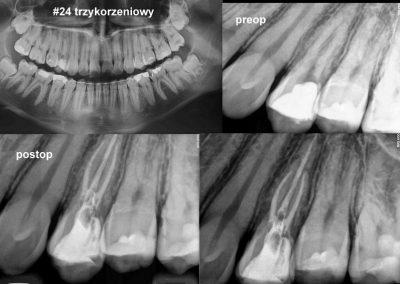 Leczenie kanałowe pod mikroskopem zęba 24