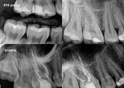 Leczenie kanałowe pod mikroskopem zęba 16