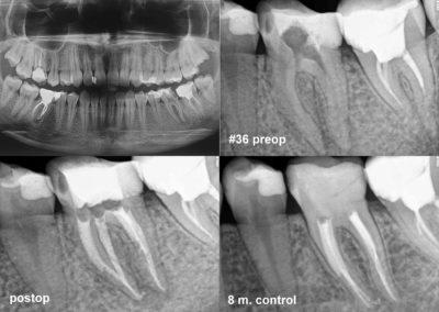 Leczenie kanałowe pod mikroskopem zęba #36