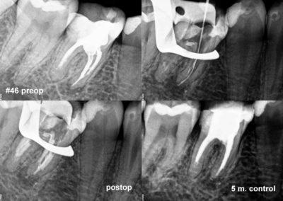 Powtórne leczenie kanałowe pod mikroskopem zęba #46