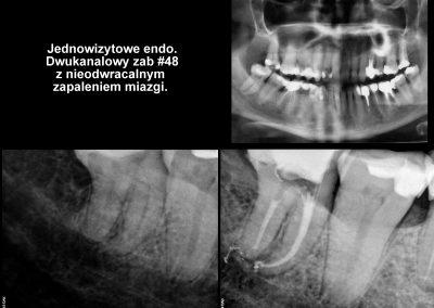 Leczenie kanałowe pod mikroskopem - ząb 48