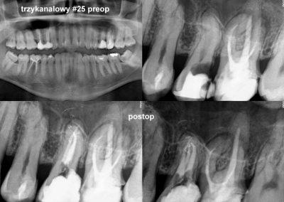 Leczenie kanałowe pod mikroskopem zęba 25