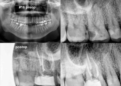 Leczenie kanałowe zęba 16