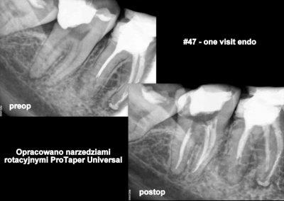 Leczenie kanałowe pod mikroskopem zęba 47