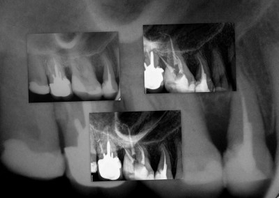 Leczenie kanałowe pod mikroskopem - ząb 16