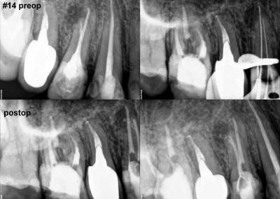 Leczenie kanałowe zęba 14