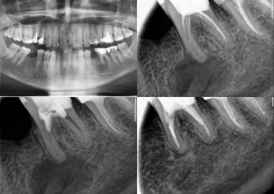 Ponowne leczenie kanałowe pod mikroskopem - ząb 36 z dużą zmianą zapalną