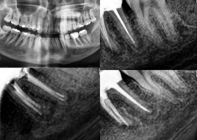 Ponowne leczenie kanałowe pod mikroskopem zęba 36