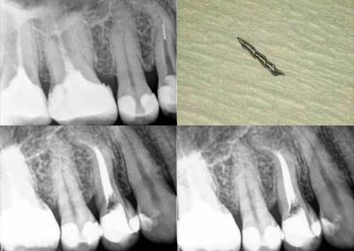 Usunięcie złamanego narzędzia i ponowne leczenie kanałowe pod mikroskopem - ząb 14 z zagiętym korzeniem
