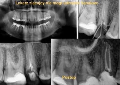 Leczenie kanałowe pod mikroskopem zęba 15