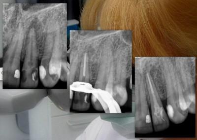Ząb 22 z resorpcją wewnętrzną