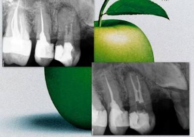 Ponowne leczenie kanałowe pod mikroskopem - ząb 14