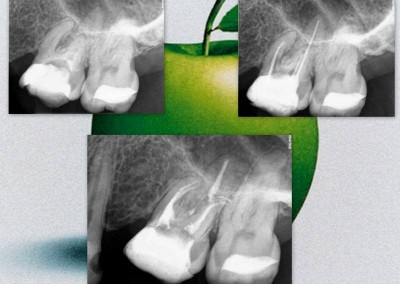 Leczenie kanałowe pod mikroskopem - ząb 26
