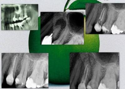 Leczenie kanałowe pod mikroskopem - ząb 24