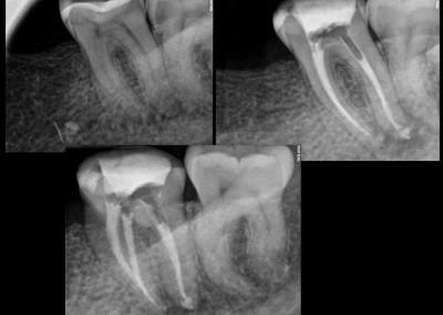 Leczenie kanałowe pod mikroskopem - ząb 37