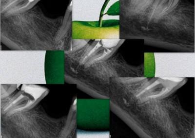 Usunięcie złamanego narzędzia i reendo zęba 47