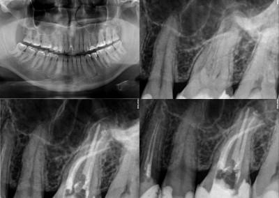 Leczenie kanałowe pod mikroskopem zęba 26