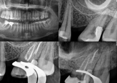 Leczenie kanałowe pod mikroskopem zęba 27