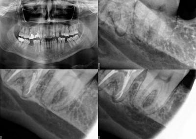 Leczenie kanałowe pod mikroskopem zęba 48