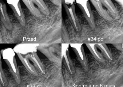 Ponowne leczenie kanałowe pod mikroskopem - zęby 34 i 36