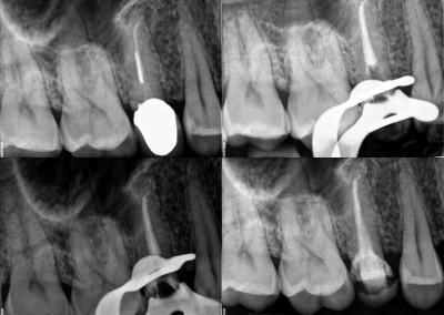 Usunięcie złamanego narzędzia i reendo zęba 15
