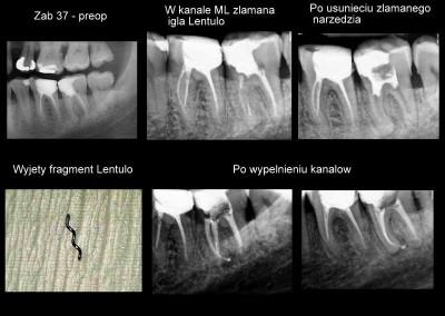 Reendo i usunięcie złamanego narzędzia - ząb 37