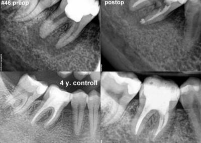 Leczenie kanałowe pod mikroskopem - ząb 46