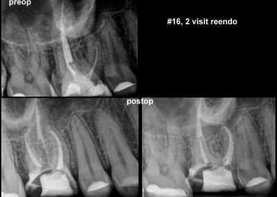 Ponowne leczenie kanałowe pod mikroskopem - ząb 16