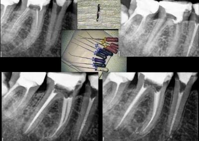 Leczenie kanałowe pod mikroskopem zęba 46 i usunięcie złamanego narzędzia