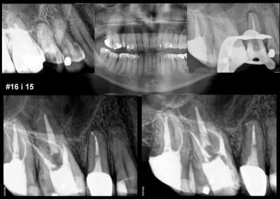 Leczenie kanałowe pod mikroskopem zębów 15 i 16