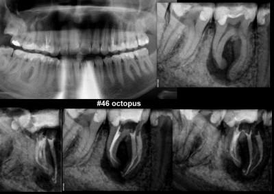 Leczenie kanałowe pod mikroskopem zęba 46 z dużą zmianą zapalną
