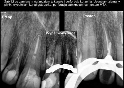 Usunięcie złamanego narzędzia i zamknięcie perforacji w zębie 12