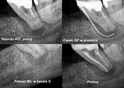 Powtórne leczenie kanałowe pod mikroskopem zęba 37 z przetoką
