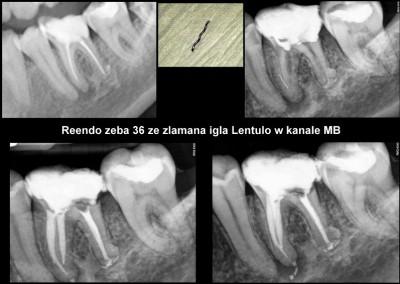 Ponowne leczenie kanałowe pod mikroskopem i usunięcie złamanego narzędzia - ząb 36