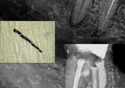 Leczenie kanałowe pod mikroskopem - ząb 47