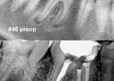 Leczenie kanałowe pod mikroskopem zęba 46