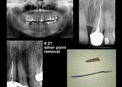 Leczenie kanałowe pod mikroskopem zęba 21