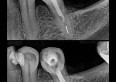 Leczenie kanałowe pod mikroskopem zęba 35 - usunięcie złamanego narzędzia